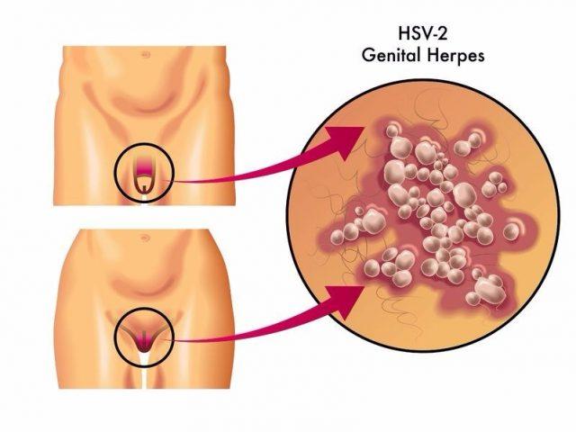 Genital Herpes HSV-2